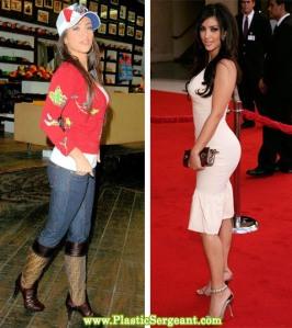 kim-kardashian-buttock-augm3