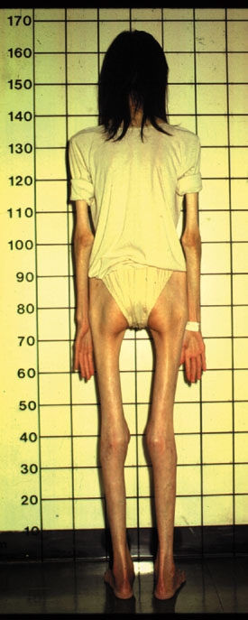 anorexia nervosa 1978 called anorexia for short is where someone eats