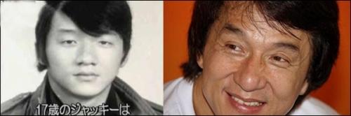 Asian double eyelid surgery | Abagond