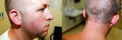 darren-wilson-actual-injuries